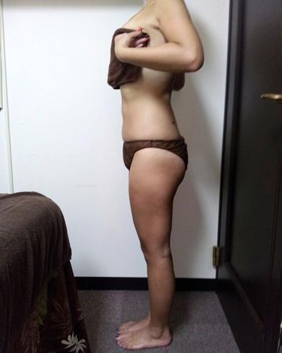 痩身エステを施術|アフター1