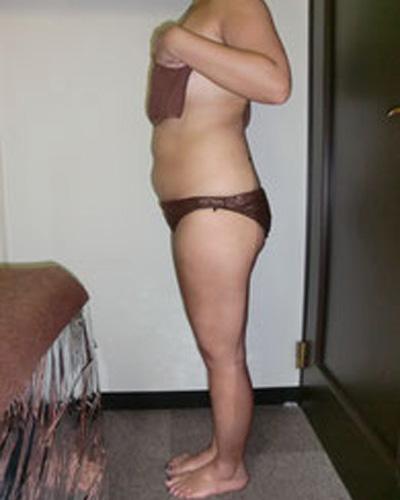 痩身エステを施術|ビフォー1